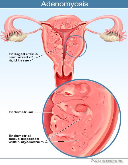 Аденомиоз эндометриоз и беременность